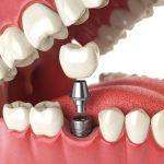 Trồng răng giả bằng phương pháp nào hiệu quả?