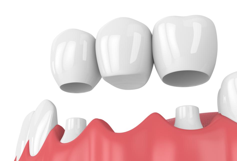 Mô phỏng phương pháp làm cầu răng sứ