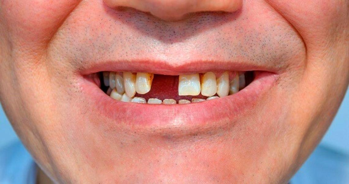 Trồng răng nào tốt nhất luôn là nỗi băn khoăn của nhiều người bị mất răng