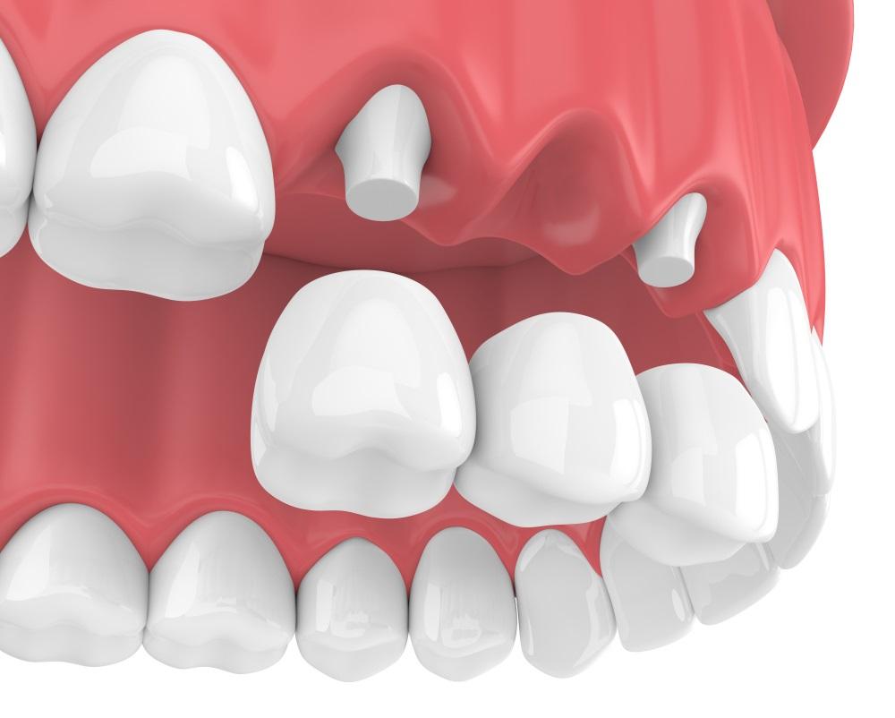 Mô phỏng phương pháp trồng răng sứ thẩm mỹ lắp cầu răng sứ
