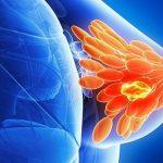 U nang tuyến vú có nguy hiểm không, có chữa được không?