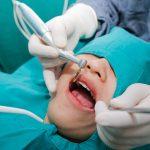 Cấy ghép implant mất thời gian bao lâu thì hoàn thiện?