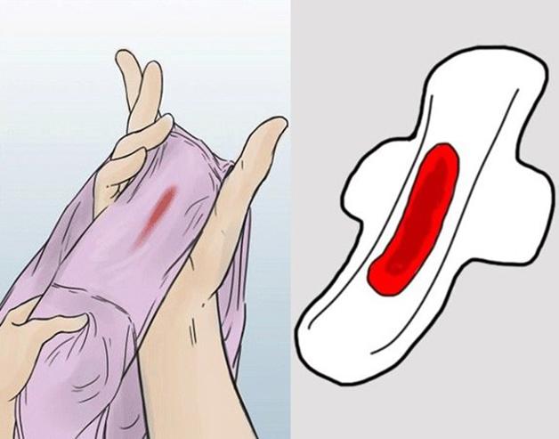 Cắt tử cung xong bị ra máu khi nào thì bình thường