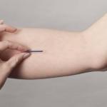 Chị em nên lựa chọn cấy que tránh thai ở đâu tốt nhất?