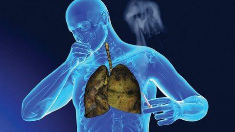 Bệnh viện nào điều trị ung thư phổi giỏi hiện nay?