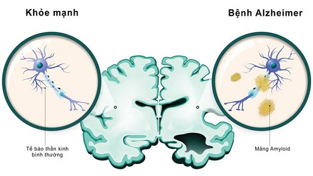 Bệnh alzheimer có di truyền không nguyên nhân do mảng bám amyloid