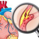 Bệnh động mạch vành: nguyên nhân, triệu chứng và điều trị