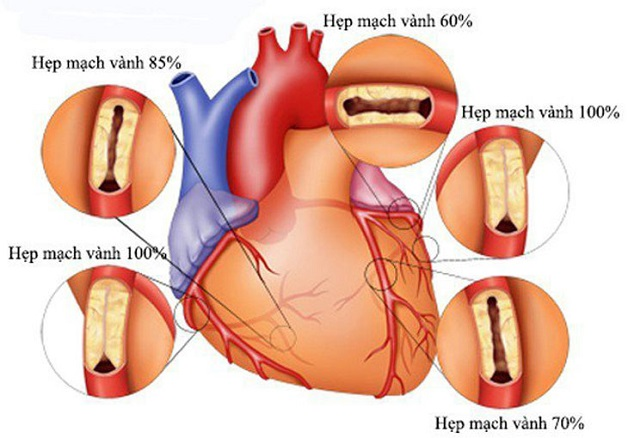 Bệnh hẹp mạch vành là bệnh lý đặc trưng bởi tình trạng giảm lưu lượng máu qua mạch vành bởi sự hình thành và phát triển của các mảng xơ vữa động mạch.