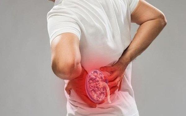 Bệnh sỏi thận gây nên những cơn đau vùng lưng, bụng cùng các triệu chứng viêm nhiễm đường tiểu