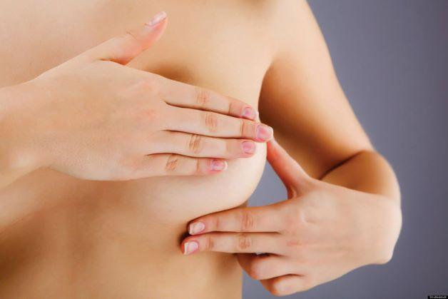 U đa nang tuyến vú là bệnh thường gặp ở phụ nữ với các độ tuổi khác nhau