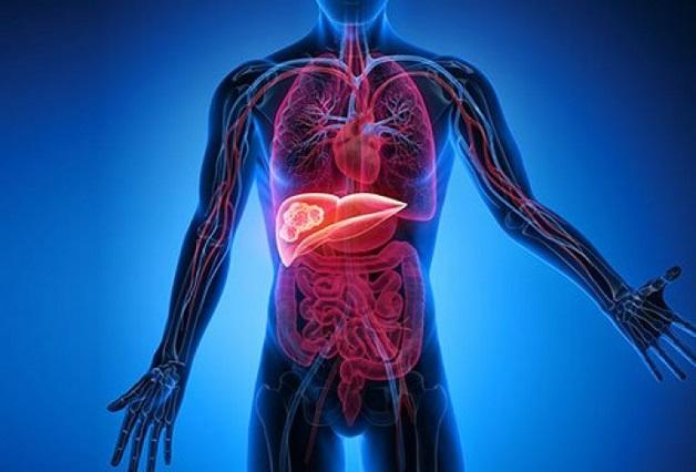 Bệnh viêm gan B là nguyên nhân gây xơ gan và ung thư gan