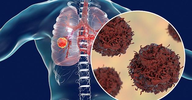 Bệnh viện nào điều trị ung thư phổi hiện nay