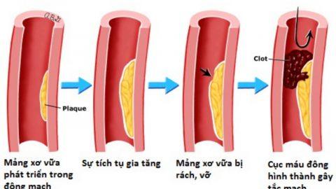 Bệnh mạch vành có nguy hiểm không?
