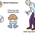 Bệnh lý Parkinson không đáng sợ như nhiều người nghĩ