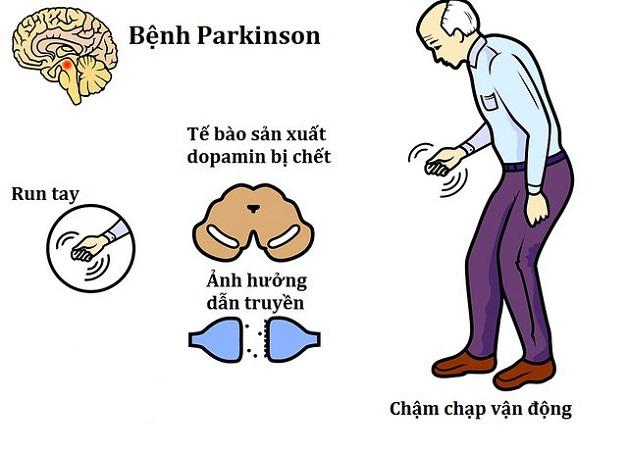Bệnh lý parkinson nguyên nhân và biểu hiện