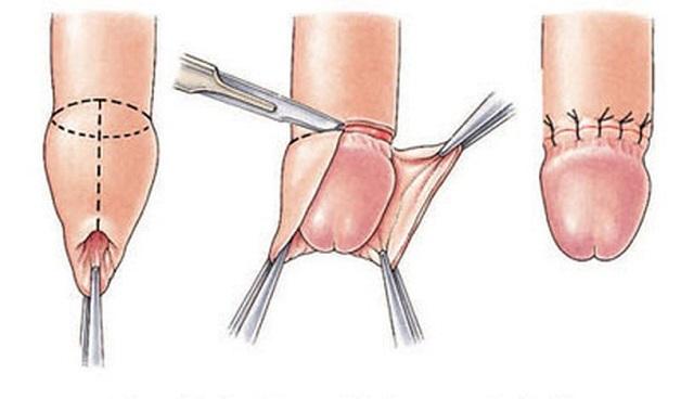 Cắt bao quy đầu là một thủ thuật ngoại khoa nhằm cắt bỏ hoàn toàn lớp da thừa bọc đầu dương vật, giúp dương vật có thể phát triển như bình thường