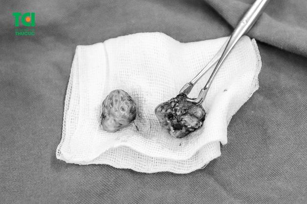 Hình ảnh amidan bị quá phát được cắt bỏ của một bệnh nhân tại BV ĐKQT Thu Cúc