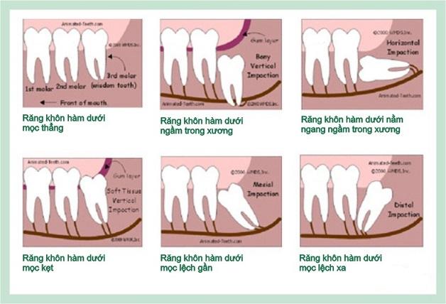 Có nên nhổ răng khôn không còn phụ thuộc vào từng tình trạng mọc răng khôn cụ thể