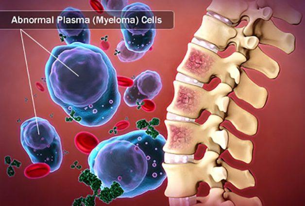 Đa u tuỷ xương (hay còn gọi là u tuỷ) là một dạng ung thư tủy xương