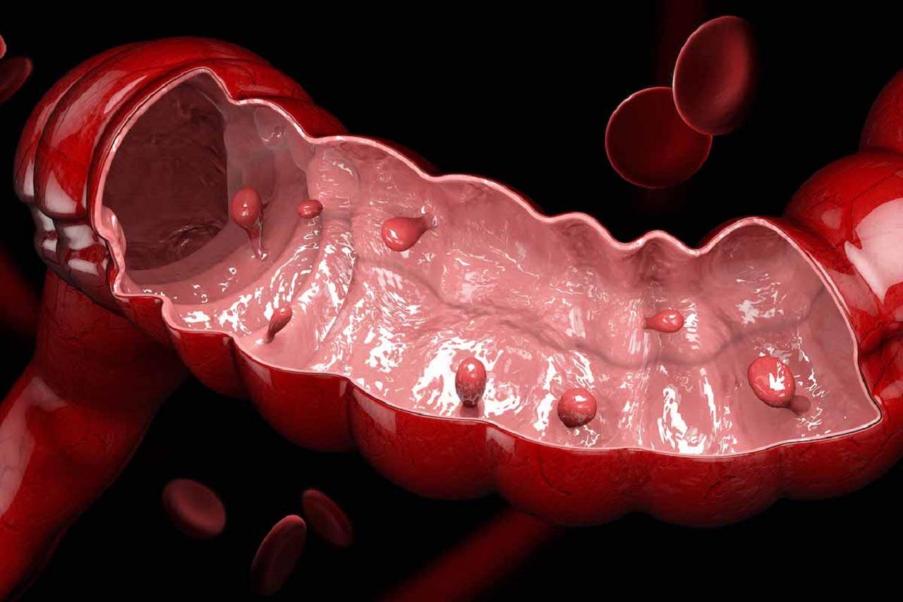 Đại tràng sigma có polyp: Cách chẩn đoán và điều trị