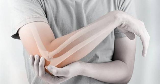 viêm điểm bán gân khuỷu tay