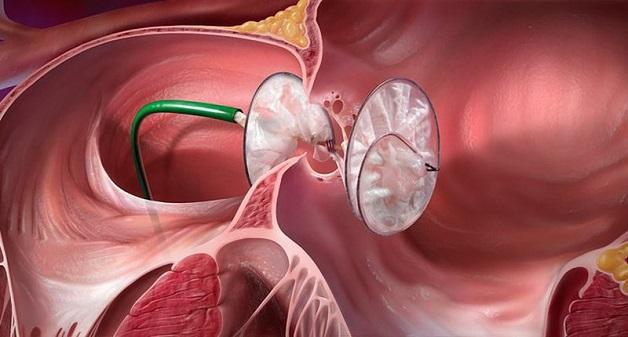Bít lỗ thông bằng dụng cụ hoặc phẫu thuật là những biện pháp điều trị trong những trường hợp thông liên nhĩ nặng.