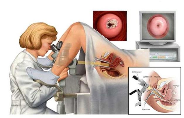 Chi phí điều trị bệnh ung thư cổ tử cung phụ thuộc vào giai đoạn bệnh, phương pháp điều trị,....