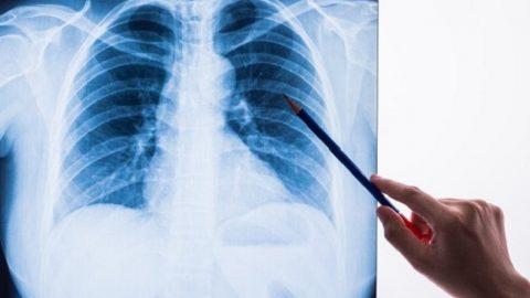 Điều trị ung thư phổi ở đâu tốt nhất tại Hà Nội?