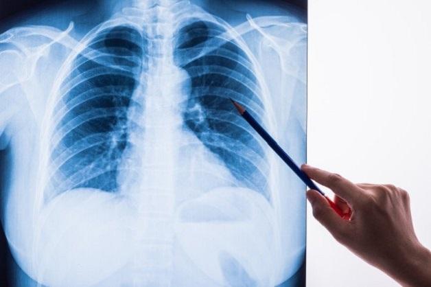 Điều trị ung thư phổi ở đâu tốt nhất tại Hà Nội