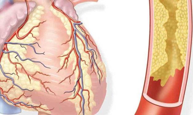 Bệnh mạch vành là tình trạng mạch vành bị tắc hẹp do sự lắng đọng cholesterol và các chất khác.