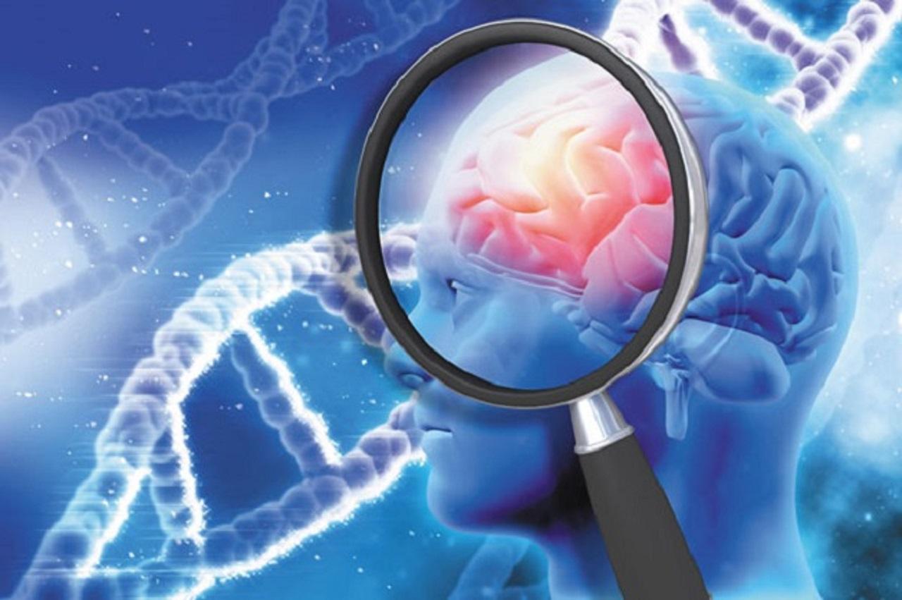 Giải đáp: Bệnh Alzheimer có di truyền không?