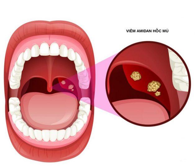 Phân biệt viêm amidan có mủ và ung thư vòm họng