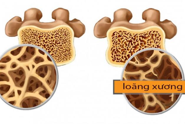 tìm hiểu về loãng xương độ 3
