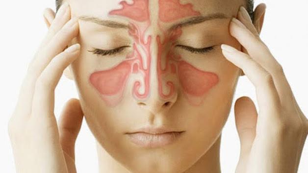 triệu chứng bệnh viêm xoang mũi cấp