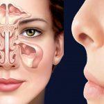 Giúp bạn hiểu rõ về căn bệnh viêm xoang mũi cấp
