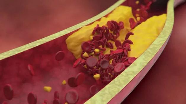 Hẹp mạch vành là tình trạng lòng động mạch vành bị thu hẹp do sự hình thành các mảng xơ vữa trên thành mạch.