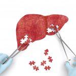 Hướng dẫn chẩn đoán và điều trị ung thư gan hiệu quả