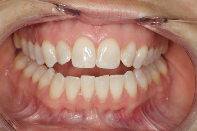 Khớp cắn hở khiến cho người bệnh không thể chạm hai hàm với nhau