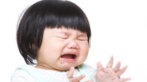 Lý giải vì sao trẻ em bị tay chân miệng lại nguy hiểm?