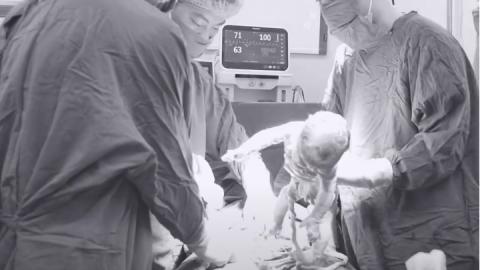 Đồng hành cùng mẹ bầu thai hiếm mang nhiều bệnh lý: đái tháo đường, đa ối