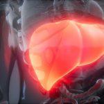 Men gan tăng: Nguyên nhân, triệu chứng và cách điều trị