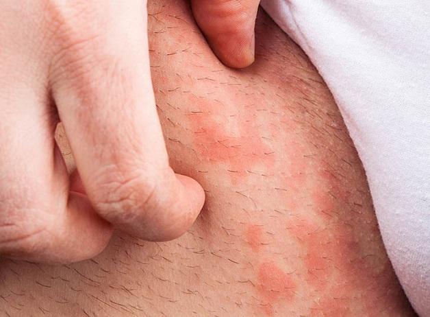 Bị ngứa vùng háng ở nam cũng có thể là triệu chứng của viêm nang lông