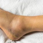 Người bị viêm khớp mắt cá chân cần tránh 5 thói quen này