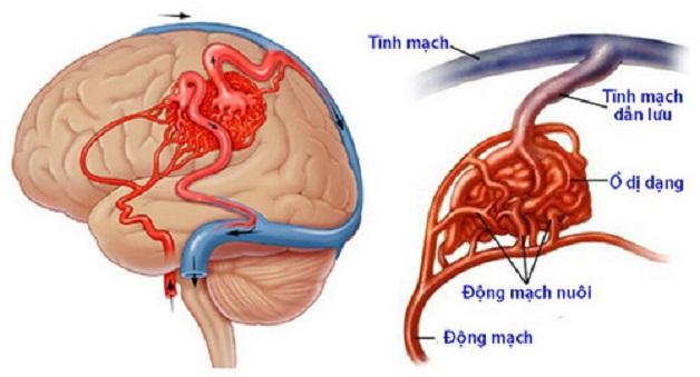 Dị dạng mạch máu não là một trong những nguyên nhân gây đau nửa đầu đau tai.