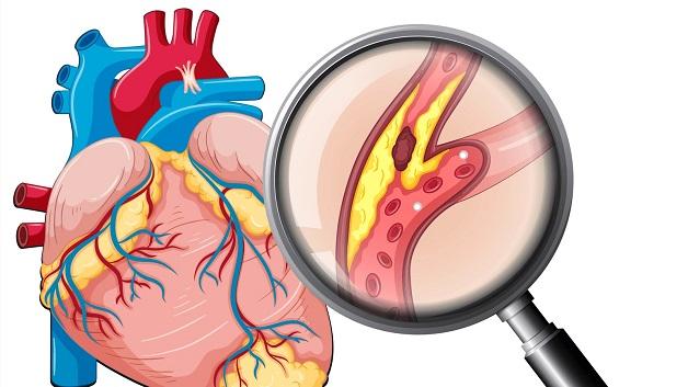 Nhồi máu cơ tim là một trong những biến cố nguy hiểm nhất của tình trạng tắc hẹp mạch vành.