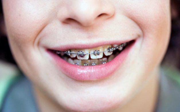 Niềng răng mắc cài kim loại gắn mặt ngoài là phương pháp ra đời đầu tiên với già thành thấp và hiệu quả cao