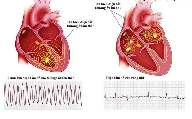 Điện tâm đồ là phương pháp phổ biến để chẩn đoán rối loạn nhịp tim.
