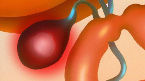 Polyp túi mật có tự hết không? Khi nào cần điều trị?