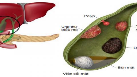 Polyp túi mật là gì và có cần điều trị không? – Góc giải đáp