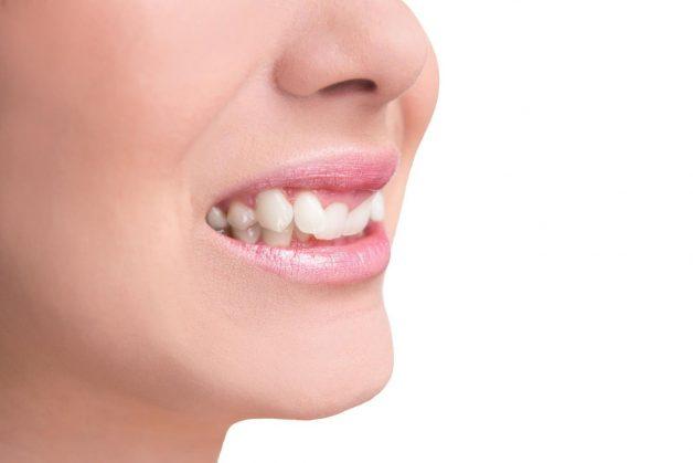 Răng khểnh là một loại răng nanh, mọc ở những vị trí bất thường trên cung hàm
